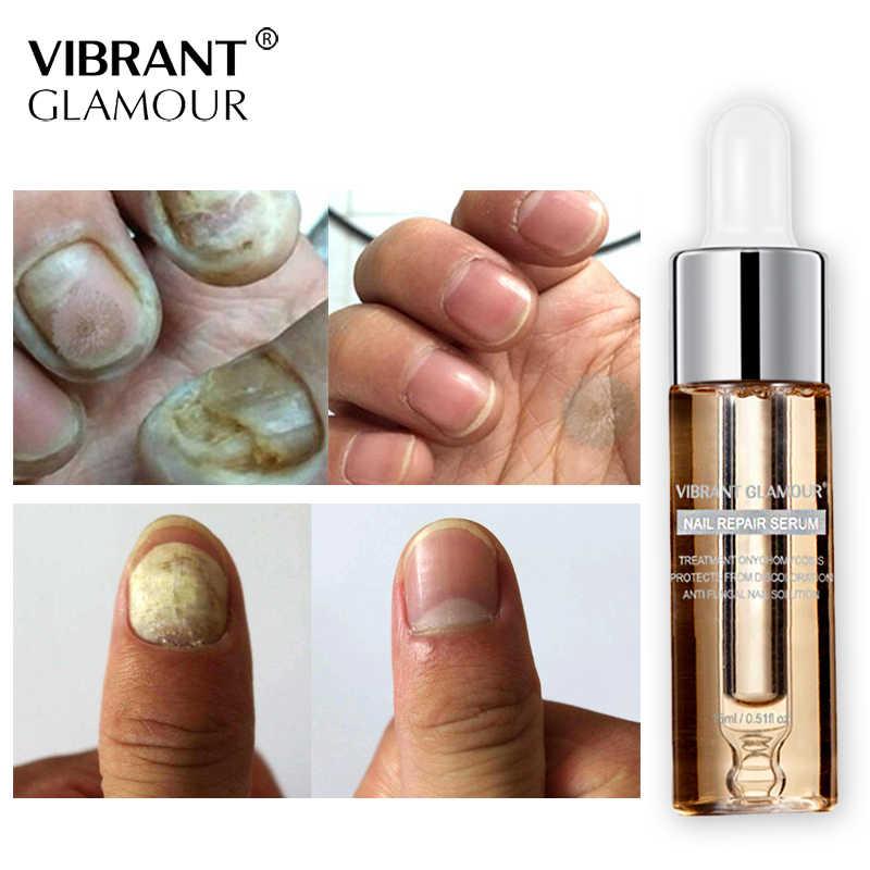 VIBRANTGLAMOUR mantar tırnak tedavisi ayak bakımı Serum tırnak ayak tırnak mantarı kaldırma jel Anti enfeksiyon Paronychia onikomikoz