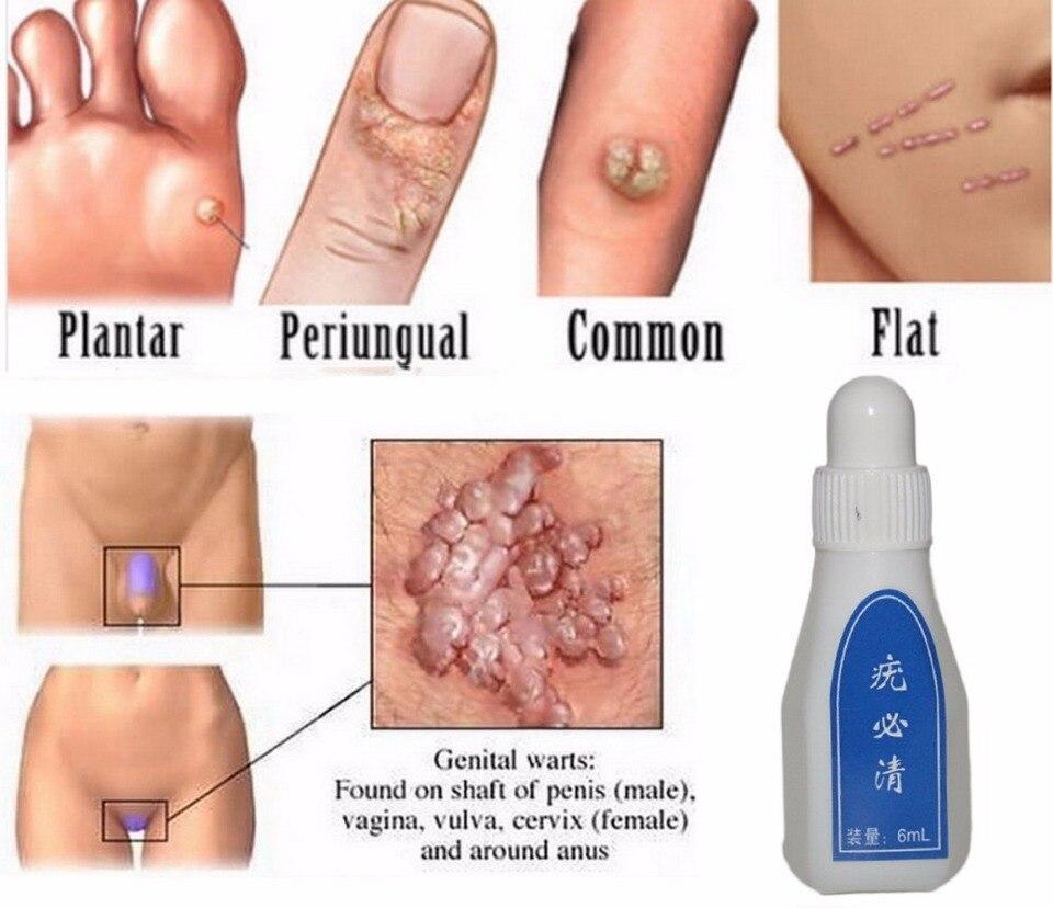 12 Hours Tu Kill Wart Remover Skin Tag Mole Genital Wart Remover
