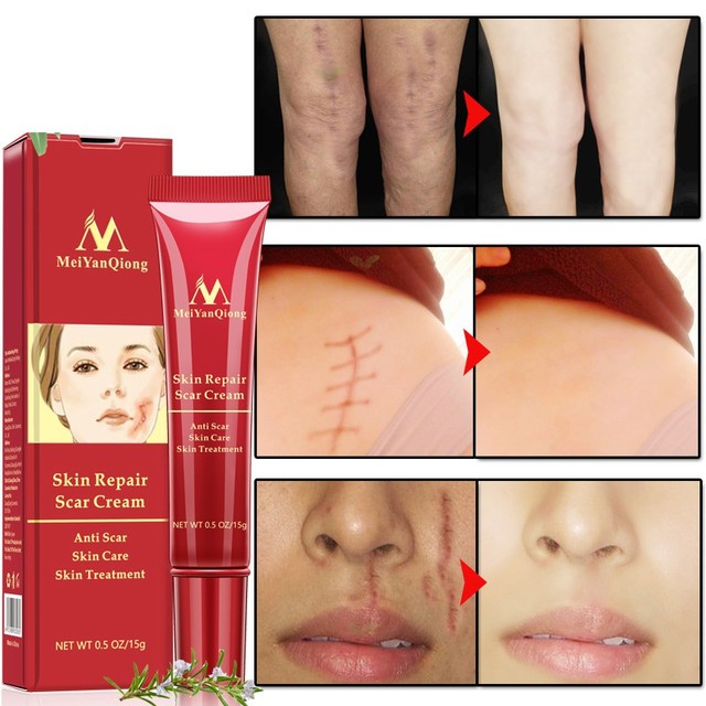 ¡Nuevo! Eliminación de cicatrices de acné crema de reparación de la piel crema facial manchas de acné tratamiento de acné Blackhead blanqueamiento crema Anti cicatrices estrías