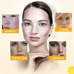 Image 5 - 10 adet Dimollaure yüz beyazlatma kremi çil krem kaldır melazma güneş yanığı akne lekeleri pigmenti Melanin Dimore yara izi temizleme kremi
