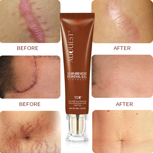 AuQuest TCM Remove Scar Acne Gel Herbal Maternity Pregnancy Body Scratches Cream Remover Beauty Skin Treatment