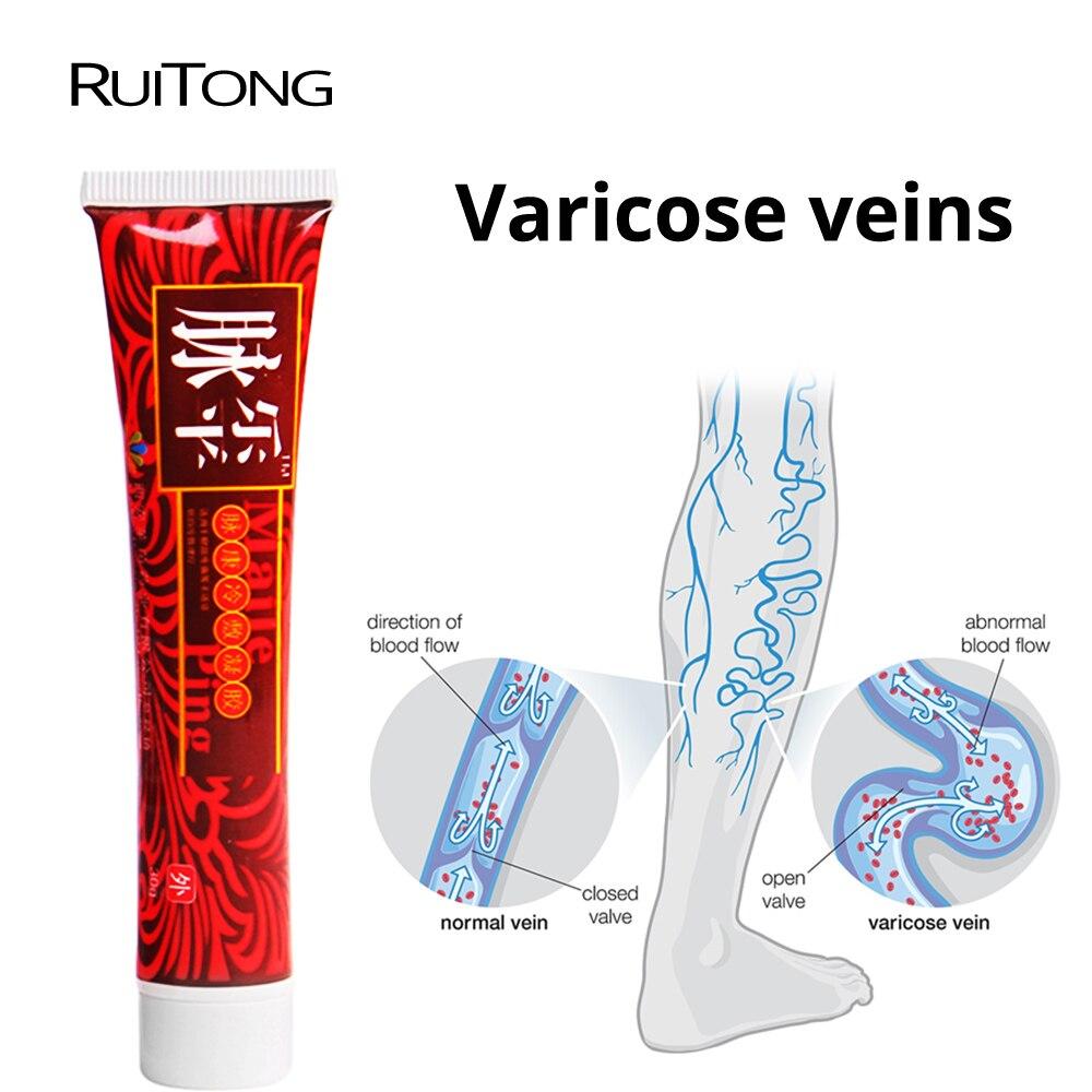RuiTong Vasculite Flebite Vasinhos Varizes Creme de tratamento Profissional Dor Varicosity Angiite Gesso Médica