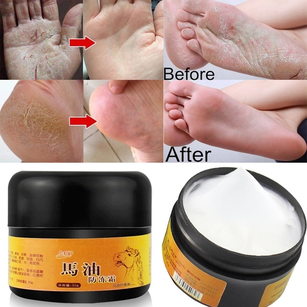 1pc Horse Oil Feet Cream Care Beriberi Cream For Athlete's Foot Feet Itch Blisters Anti-chapping Peeling Beriberi Bad Feet Ointm