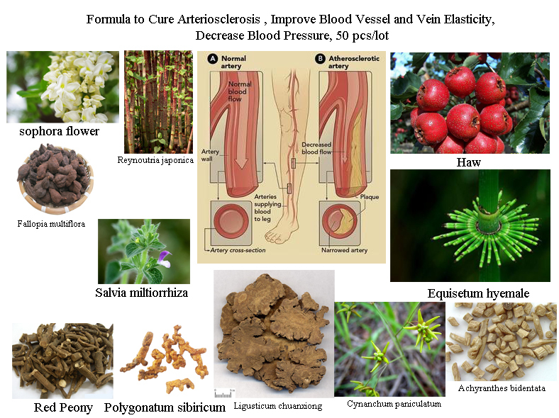 Formula of All Natural Herbal Ingredients to Cure Arteriosclerosis, Increase Artery Elasticity, Cleanse Blood Vessels and Veins-in Nail Glitter from Beauty & Health