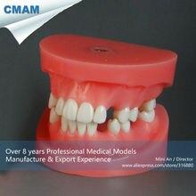 CMAM-DT2014 Dental Training Model Bridge Preparation Practice Model