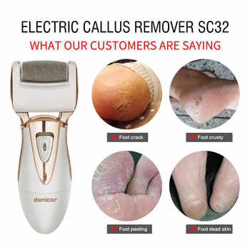 2018 Electric Exfoliator Pedicure Machine Callus Remover Foot Care Roller Tool, Pedicure File for Feet Heel 7 Grinding Heads