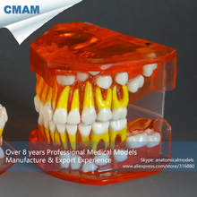 CMAM-DT304 Removable Pink Silicone Gingiva Primary Dentition Development Study Model
