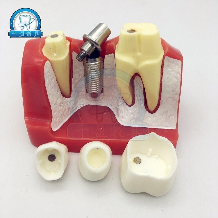 dental teaching model 4X tooth planting explanation model implant nails
