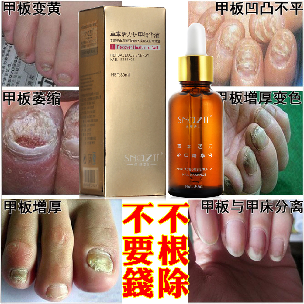 100%Genuine Snaz Fungal Nail Treatment Essence Nail and Foot ...