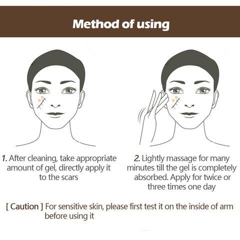 VIBRANT GLAMOUR Acne Scar Stretch Marks Remover Cream Skin Repair Face Cream Spots Treatment Blackhead Whitening Cream TSLM2 Karachi