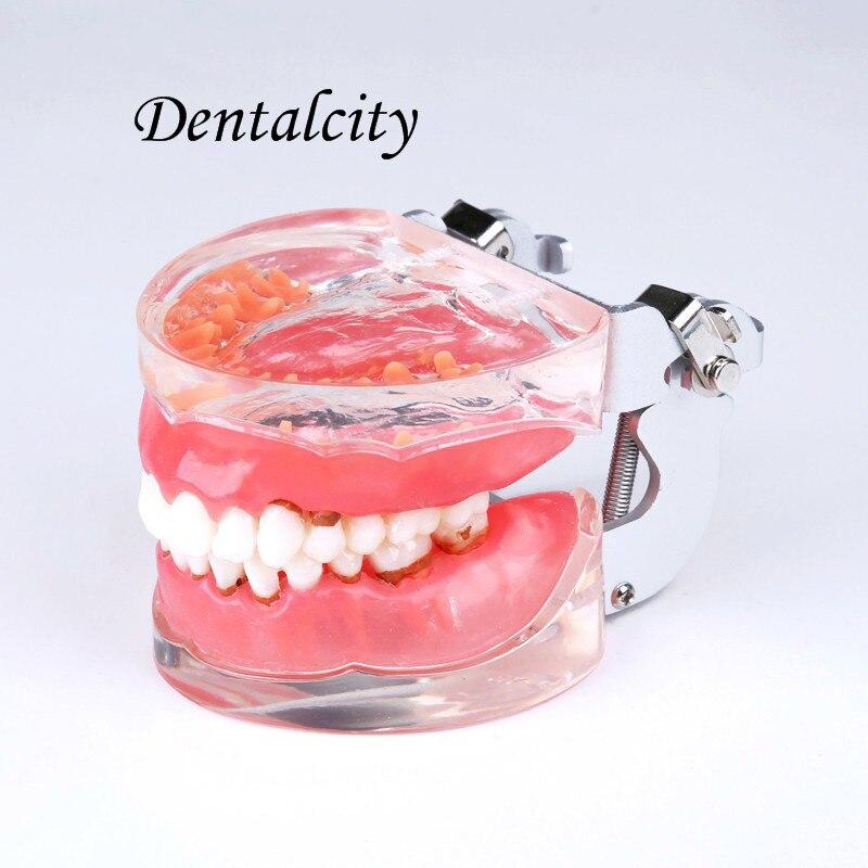 doença periodontal patológica 4017