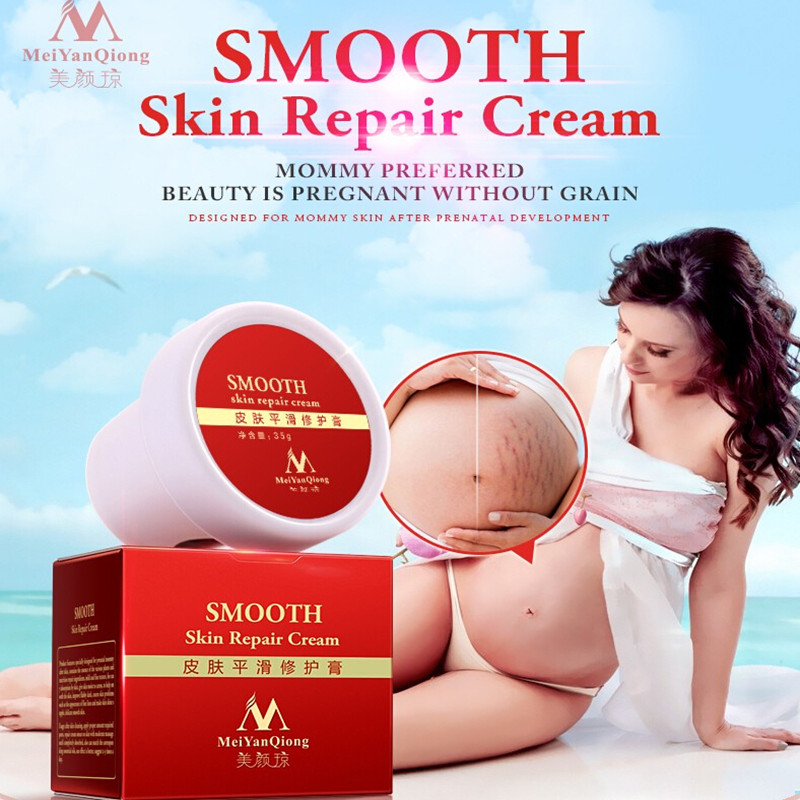 High Quality Smooth Skin Cream For Stretch Marks Scar Removal To Maternity Skin Repair Body Cream Remove Scar Care Postpartum 5