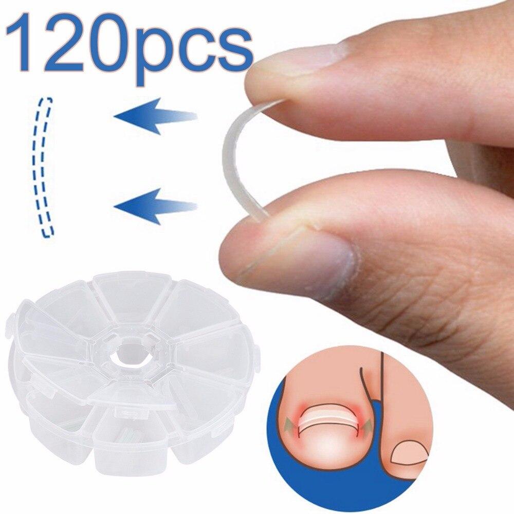 Инструмент для коррекции вросших ногтей, инструмент для ухода за ногами, 120 шт./кор.