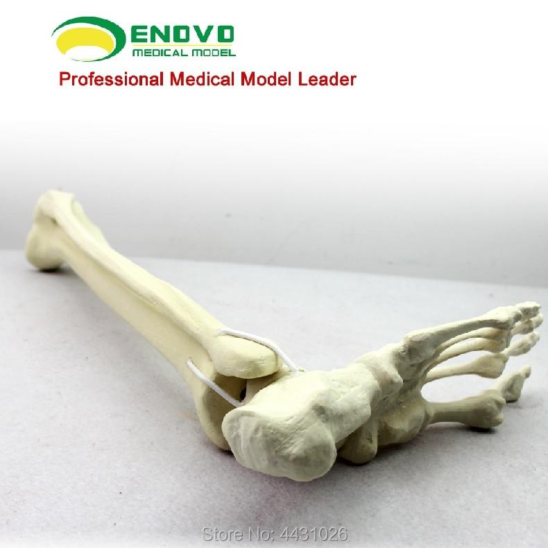 лучшая цена ENOVO Orthopedic surgery was performed to simulate the bone model of Sawbone artificial bone model