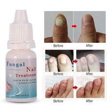 Firstsun, 10 мл, средство для лечения грибковых ногтей, для отбеливания ног, для удаления грибка, для ног, для ухода за ногами, гель для ногтей для онихомикоза TSLM2