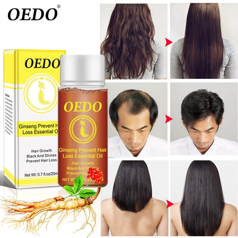 Ginseng Hair Growth Anti-off Essential Oil Repair Damage Hair Speed Promotes Hair Growth Nourish Thick Roots Repair Dry Hair