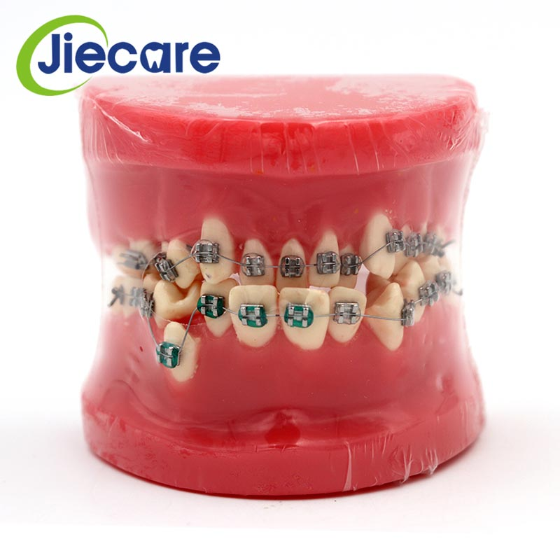 1 PC Dental Red Teeth Model Dental Model Orthodontic Correction Ceramic Bracket Model Ornament For Teaching Dental Materials teeth model blue dental orthodontics communication model with 4 types of brackets
