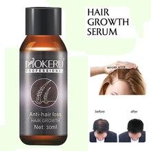 Mokeru 2pcs/lot Natural herbal essence hair loss products fast wild hair growth