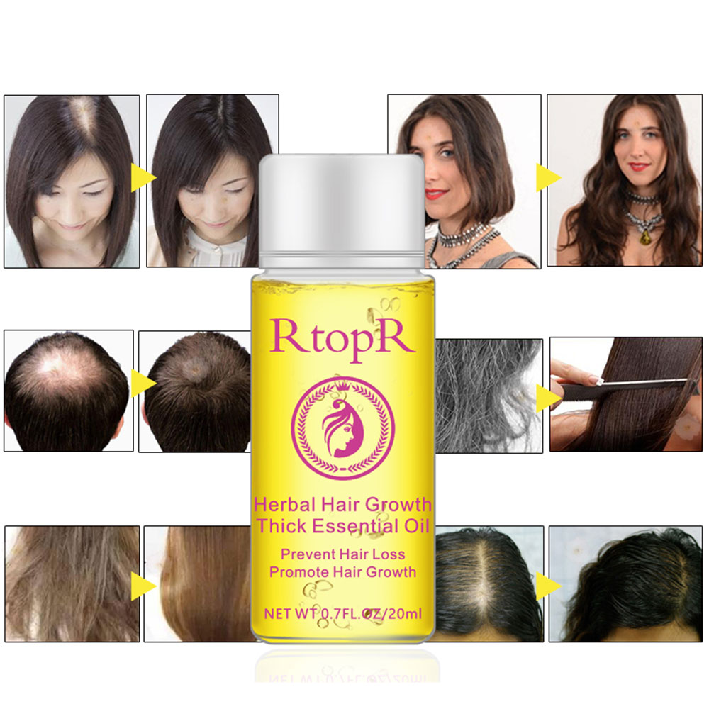 20Ml Hair Oil Fast Hair Growth Essence Human Baldness Natural Herbal Powerful Hair Growth Treatment Fluid Anti Hair Loss