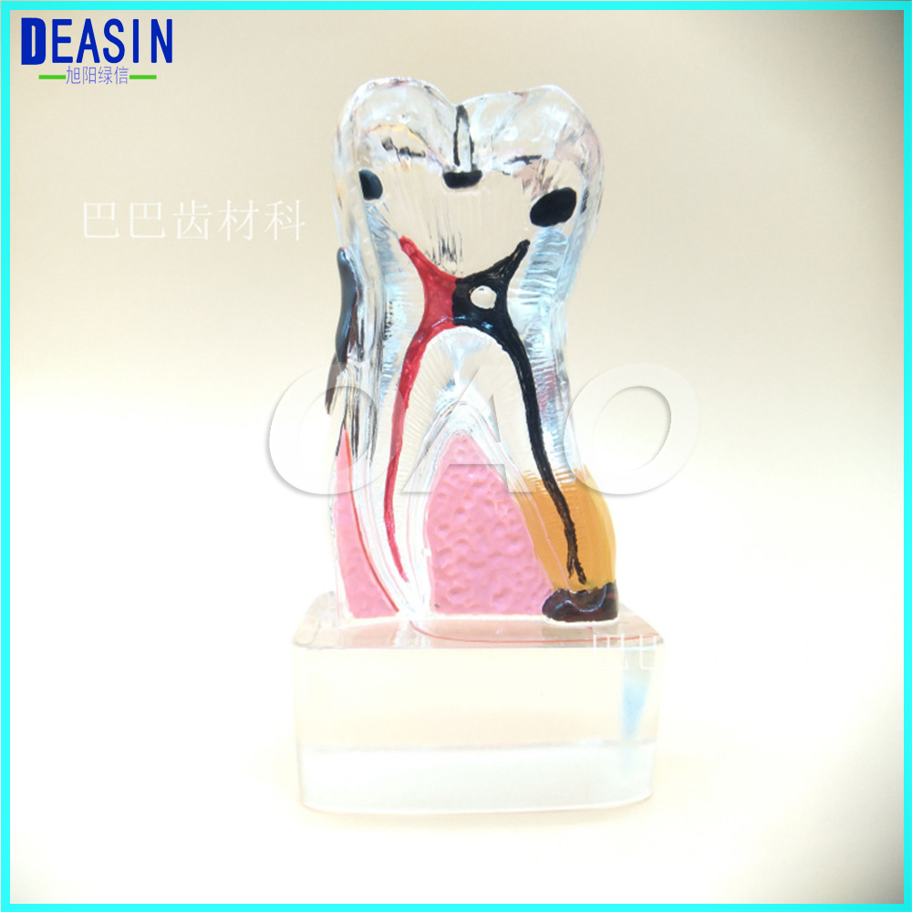 Teeth model 4 times tooth model dental pathology teeth model, dental caries, calculus, pulp stones, Occlusal tooth wear teeth model blue dental orthodontics communication model with 4 types of brackets