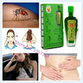 12 ml Aceite de Mentol y Aceite Fengyoujing bálsamo de aceite Esencial de Eucalipto Vietnam Parada Picadura de Mosquito Picazón Dolor de Cabeza de Enfriamiento