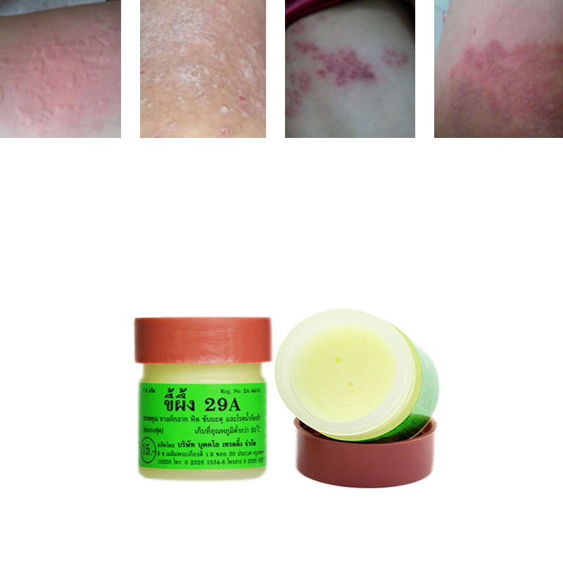 Profesprofessional Cure Psoriasis Ointment Original From Vietnam Native Medicine Ingredient Security 1 Pcs