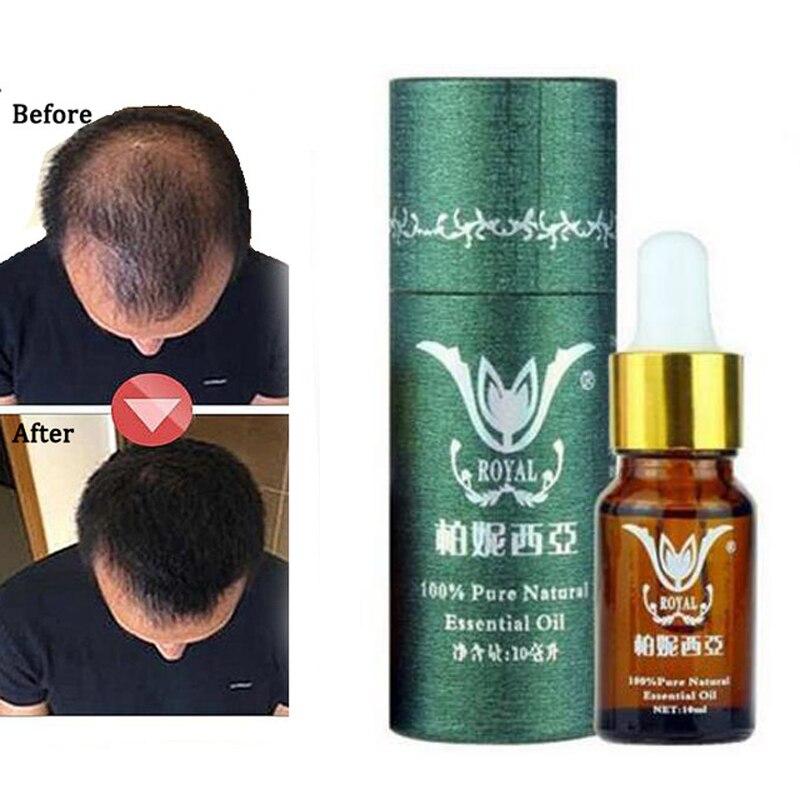 Prodotti di Crescita dei capelli Naturale Senza Effetti Collaterali Più Veloce Crescere I Capelli Trattamento Ripristinare Ricrescita Pilatory Anti Prodotti contro la perdita dei capelli