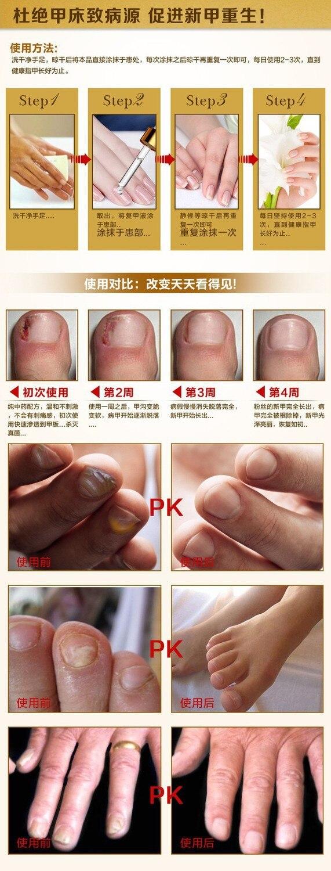 AFY Fungal Nail Treatment TCM Essence Oil Hand and Foot Whitening Toe Nail Fungus Removal Feet Care Nail Tools Nail Gel Polish 9