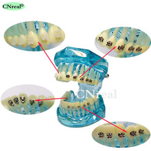 1 Pc Dental Teeth Model Orthodontic 4-type Brackets Contrast Metal Ceramic Lingual Invisalign Braces 2016 dental orthodontic study teeth model with metal brackets simulation teeth model teeth