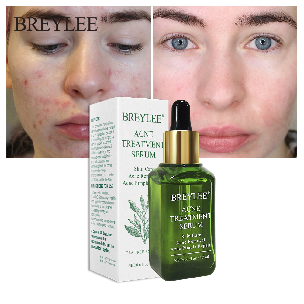 BREYLEE Acne Treatment Serum Facial Essence Anti Acne Scar Removal Cream Face Skin Care Whitening Repair Pimple Remover For Acne