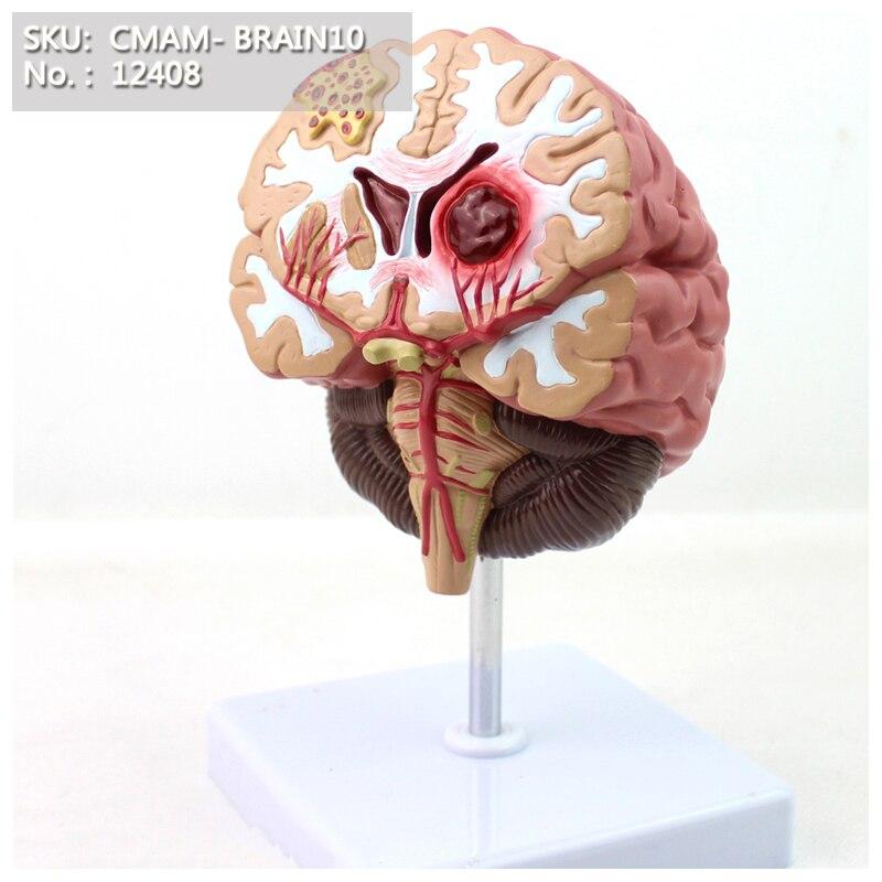CMAM/12408 Pathologies cérébrales, modèle humain anatomique du cerveau médical