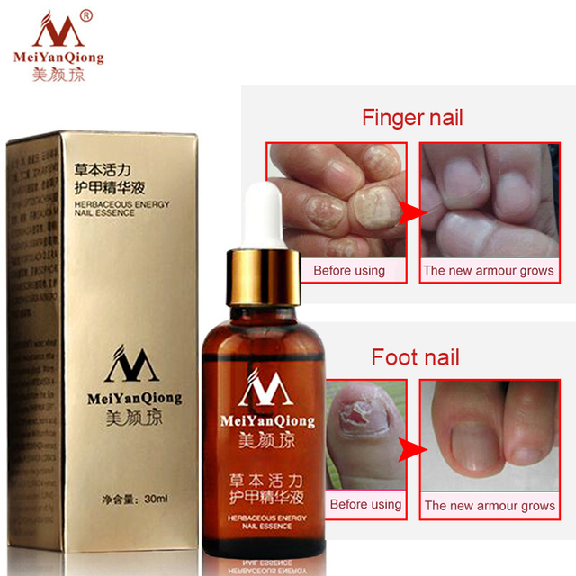 Remedy For Nail Fungus Treatment Feet Care Essence Whitening Toe From Nail Foot Fungus Remove Gel Antifungal Onychomycosis Cream