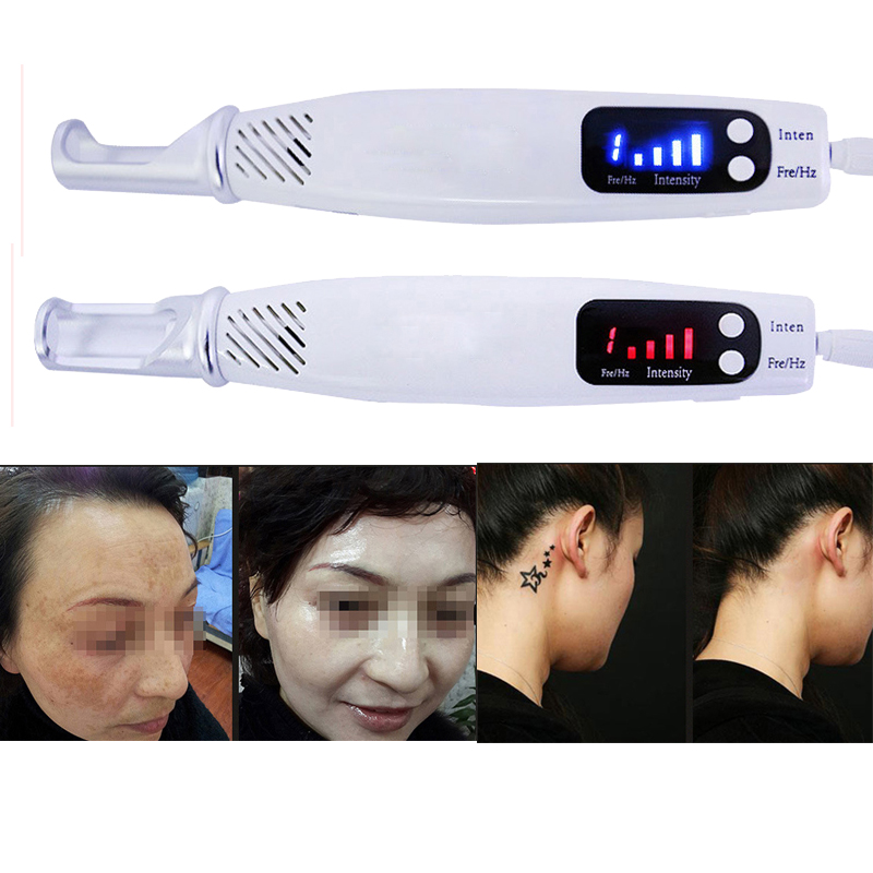 Professional Laser Picosecond Pen Tattoo Scar Freckle Remove Picosecond Laser Pen Euro US Plug Mole Freckles Tattoo Skin Care 30