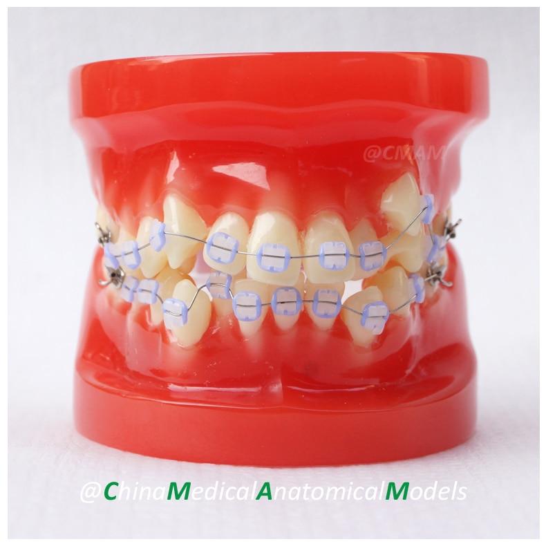 13033 DH204-3 Ortho Ceramic Bracket, Dentist Training Oral Dental Ortho Ceramic Bracket Model, China Medical Anatomical Model dh203 2 dentist demo oral dental ortho metal and ceramic model china medical anatomical model