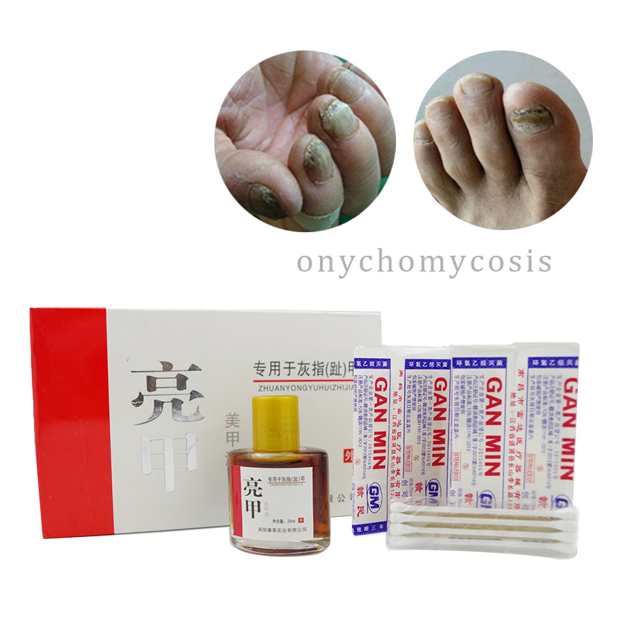 Nail Treatment liquid /onychomycosis Paronychia / Anti Fungal Removal Nail Infection Good Result a model for bacterial fungal interactions