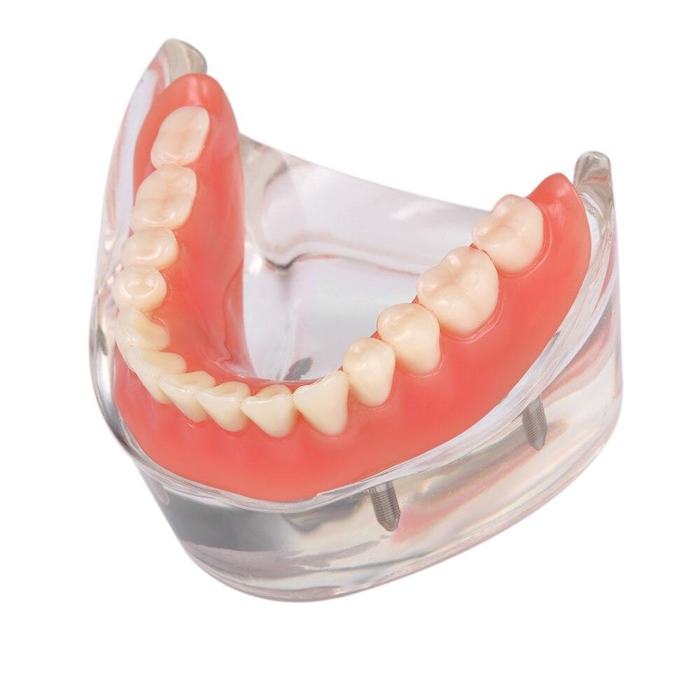 Modèle de dents de prothèse dentaire modèle de dents inférieures mandibulaires intérieures amovibles modèle mandibulaire avec Implant pour étude d'enseignement des dents