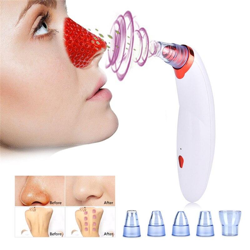 Cara Limpa Poros Cravo Remover Sucção A Vácuo corpo Escavação de Vácuo Ferramenta de Remoção de Acne Pimple Facial Dermoabrasão Diamante Máquina