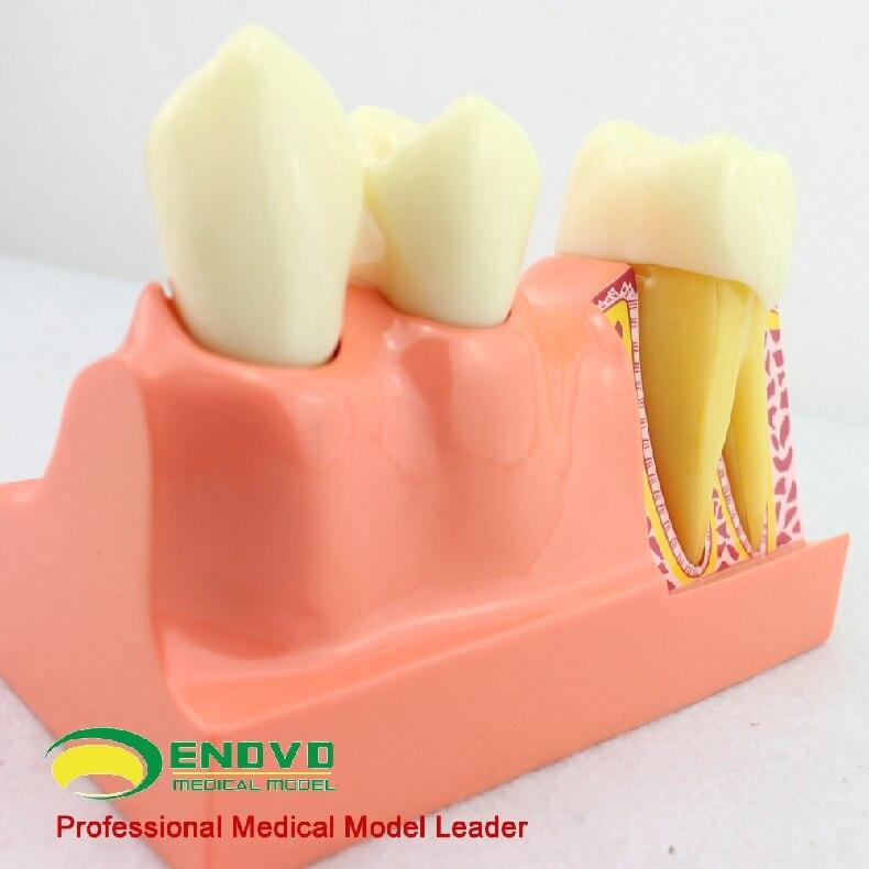 Compra anatomía dental y disfruta del envío gratuito en AliExpress.com