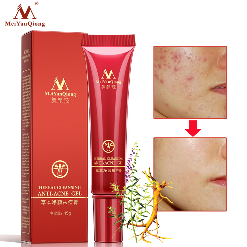 High Quality Herbal Cleansing Gel Face Anti acne treatment cream Herbal scar removal oily skin Acne Spots skin care face крем uriage hyseac 3 regul global skin care for oily skin with blemishes