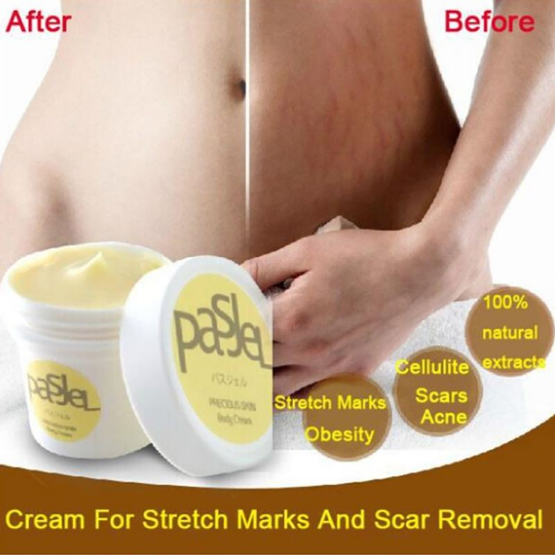 Hot! 50g Precious Skin Body Cream Remove Stretch Marks Treatment Postpartum Repair Whitening Pregnancy Scar Removal ...