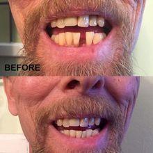 Зубные Фанера для зубов накладные улыбка Фанера съемный Фанера на зубах мгновенная улыбка временный зуб исправить комплект натуральный Цвет