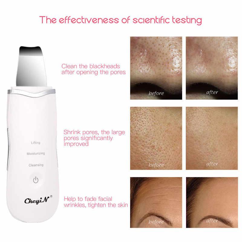 Limpiador Facial ultrasónico portátil multifuncional Dispositivo de cuidado de la piel instrumento de belleza máquina de limpieza de la cara profunda elevador Blanqueador