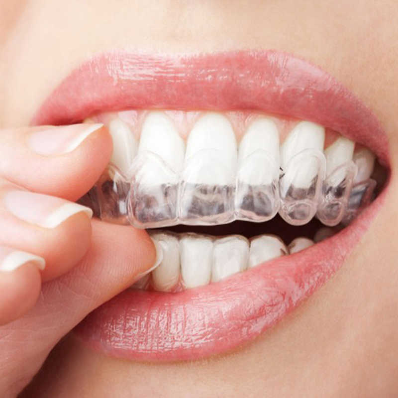 10 cái/lốc Làm Trắng Răng Dập Xù Miệng Khay Đựng Làm Trắng Răng Nha Khoa Hệ Thống Trang Thiết Bị Răng Miệng Gel Bộ Thả Vận Chuyển