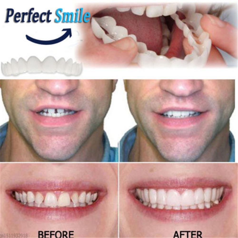 Practical Design Men Women Tooth Perfect Smile Comfort Fit Flex Teeth Fits Whitening Smile False Teeth Cover