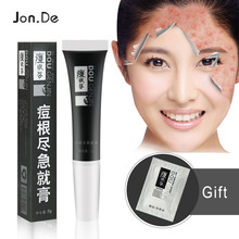 Cream acne scars mark remover skin lightening face cream whitening
