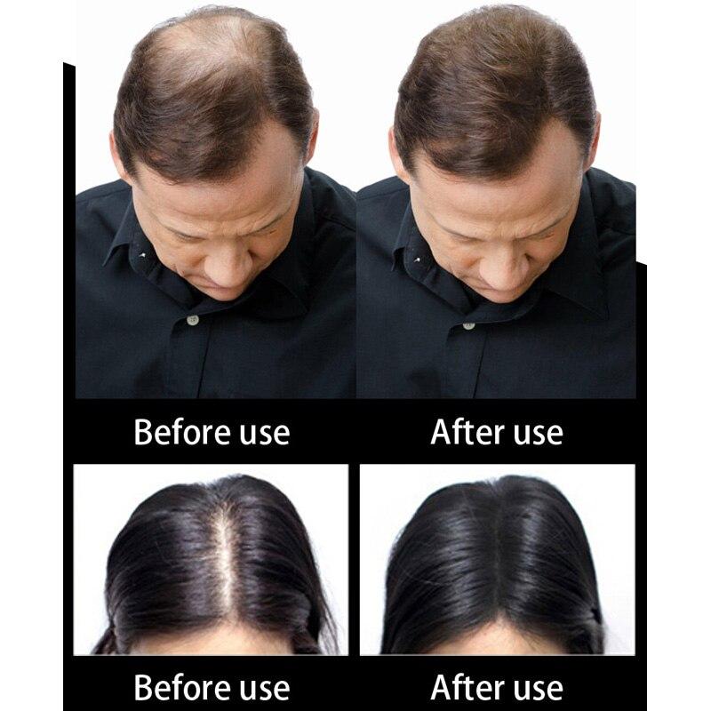 1000g cosmético hecho a mano de fibra de cabello humano, Corrector de pérdida de cabello, colorante de estilo, fibra de Color, aplicador para polvos de pelo, bolsa de recarga - 5