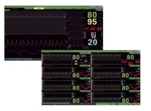 CONTEC CMS9000 Central Monitoring System,Networked to CONTEC Patient Monitor