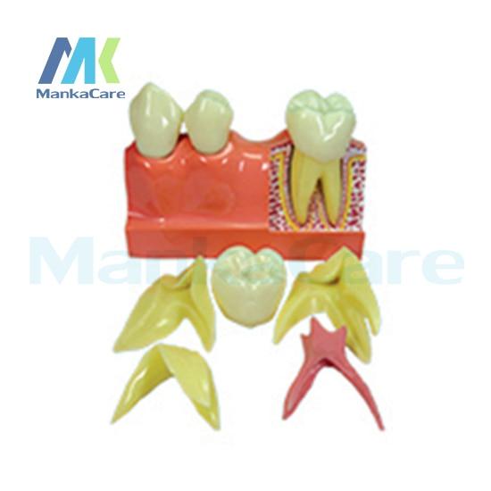 Manka Cuidar-4 Vezes a Desmontagem/Importado resina dentes/Importado placa de borracha de quartzo Modelo Oral Dente Dentes Modelo
