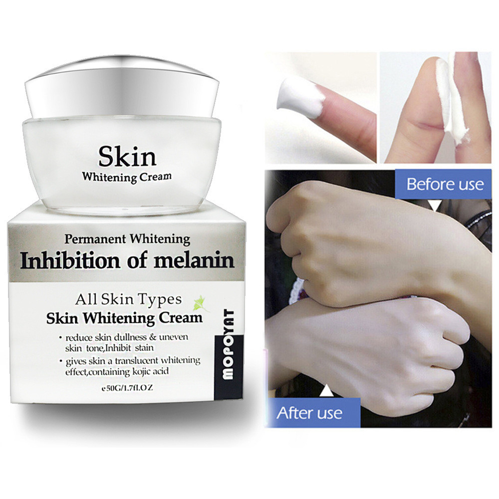 Freckle-Cream Pigment-Melanin Whitening Powerful Acne-Spots Remove-Melasma Strong-Effects