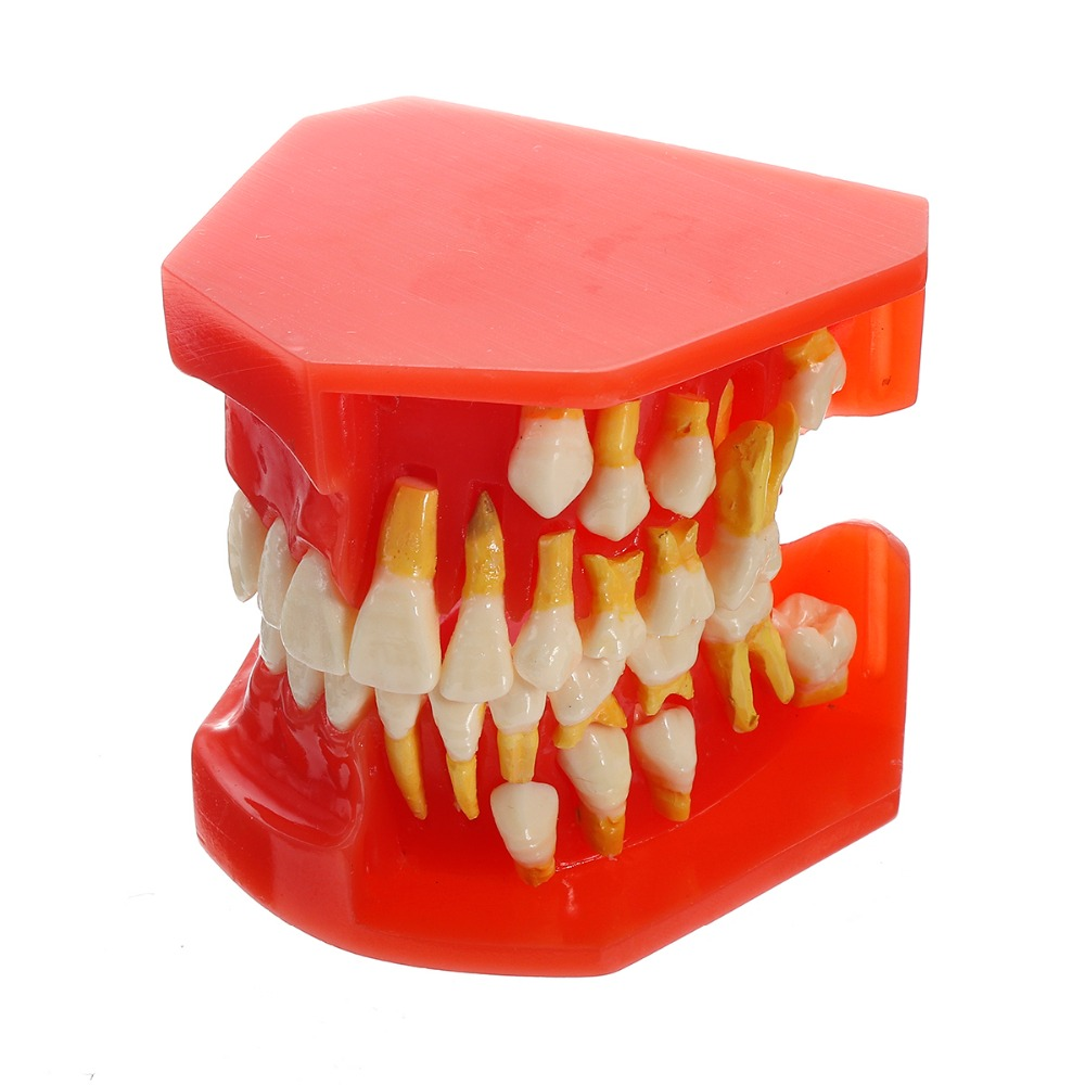 Modèle d'enseignement des dents dentaires enfants dent permanente modèle alternatif dents à feuilles caduques démonstration amovible pour les enfants qui étudient